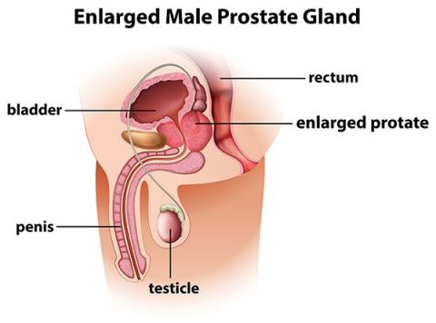 St George Urology Benign Prostatic Hyperplasia Bph