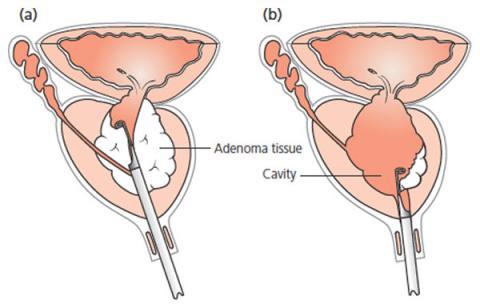 laser prostate surgery vs turp prosztatagyulladás homeopátia